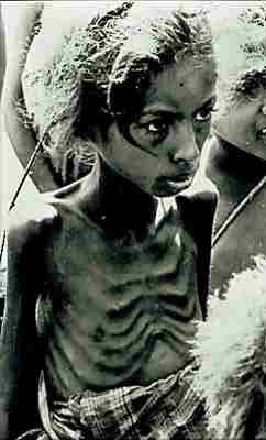 starving_girl